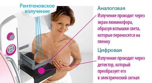 Обзорная маммография
